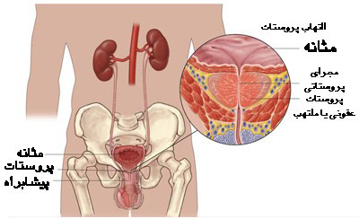 پروستاتیت و التهاب پروستات