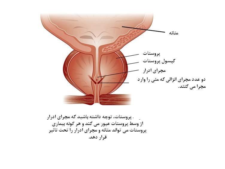 پروستاتیت چیست ؟ آشنایی با بیماریهای پروستات و بزرگی پروستات