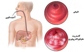 میکروب هلیکوباکترپیلوری عامل عفونت و زخم معده
